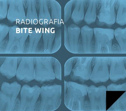 radiografia_bite-wing