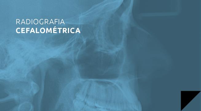 radiografia_cefalometrica