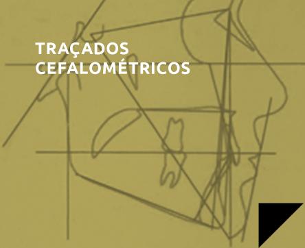 tracados_cefalometricos